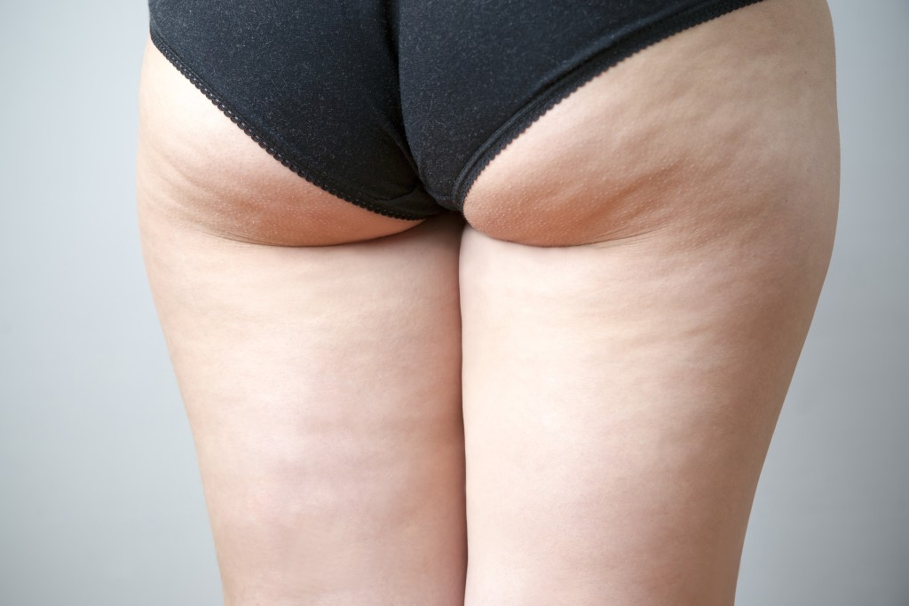 Deep Butt Crease Where The Butt Meets The Upper Thigh